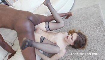 anal legal